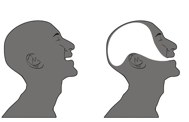 dysarthria vs aphasia